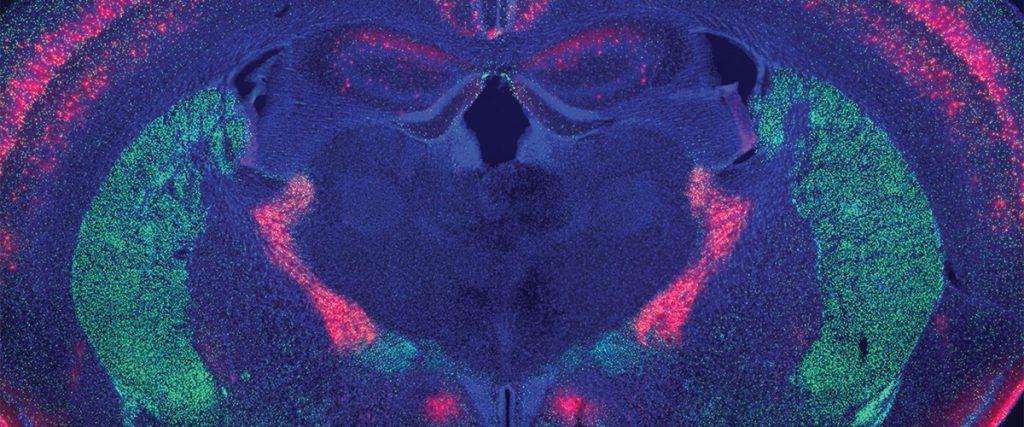 Neurological Pathways